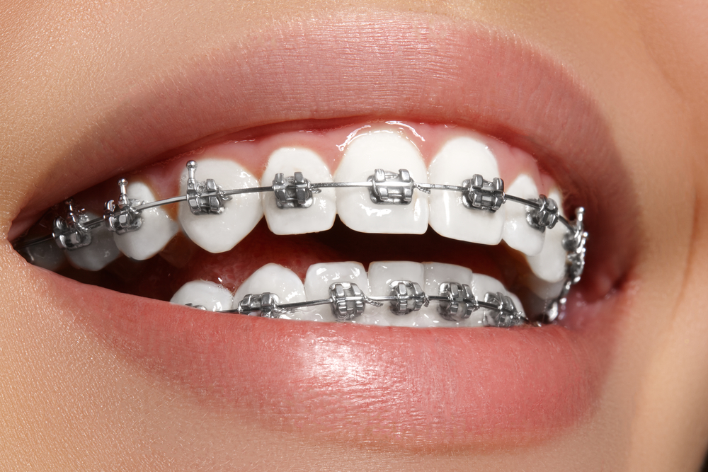 Healthy Mouth with braces